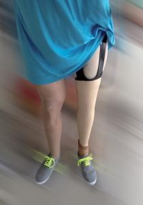 emboîture Haute Fidélité™ de prothèse de jambe