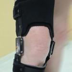 l'orthèse OdrA est un moyen souvent efficace pour soulager les personnes souffrant d'arthrose du genou