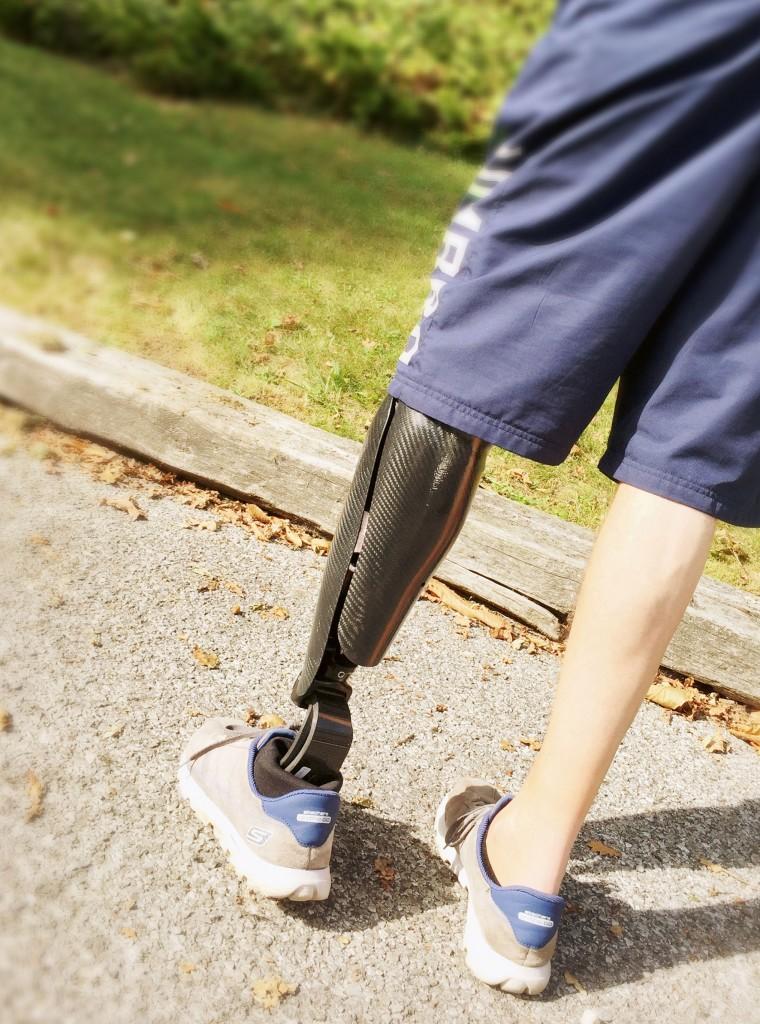 """Un habillage de prothèse élégant : """"Black Pearl"""" de Mathis Orthopédie"""