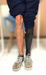 Un habillage de prothèse de membre inférieur peut-être personnalisé