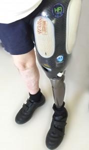 Un appareillage orthopédique de pointe