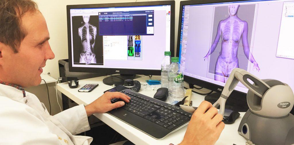 Des corsets de scoliose fabriqués par modéilsation 3D numérique