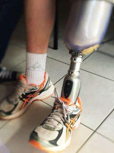 prothèse de pied haute technologie avec son emboîture signée Mathis Orthopédie
